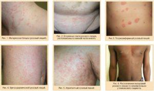 Розовий лишай на лице - опасна ли болезнь и как ее лечить?