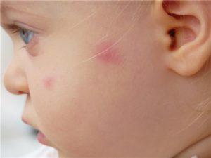 Лишай на лице у ребенка