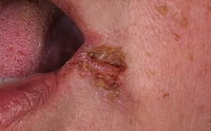 Лечение импетиго - особенности лечения всех видов заболевания