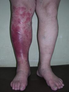 Как определить симптоми рожистого воспаления и вилечить болезнь?