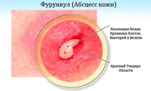 Фурункул или абсцес кожи