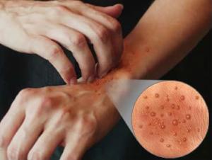 Атопический дерматит у взрослых на руках