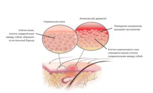 Как проявляется атопический дерматит