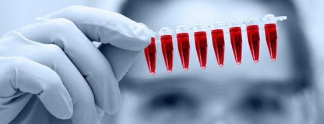 Общее исследование крови