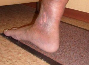 Екзема на ногах - причини, симптоми и лечение разних видов болезни на ногах