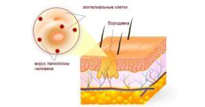 Плоские бородавки - причини появления и способи лечение