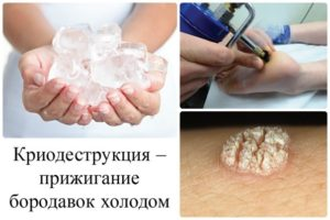 Вульгарные бородавки - причины, симптомы, лечение и народные методы